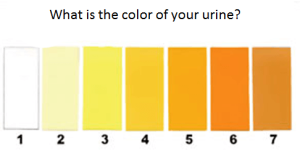 Color-of-urine-500x320